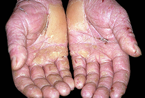 Dermatitis Showing Crusting and Thickening of the Skin - Photo credits – Contains public sector information published by the Health and Safety Executive and licensed under the Open Government Licence v1.0