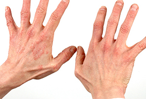 Dermatitis Showing Reddening of Skin - Photo credits – Contains public sector information published by the Health and Safety Executive and licensed under the Open Government Licence v1.0.